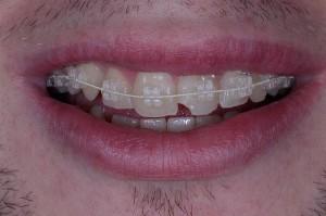 Ortodoncia-wikipedia