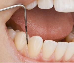 Periodontologia3